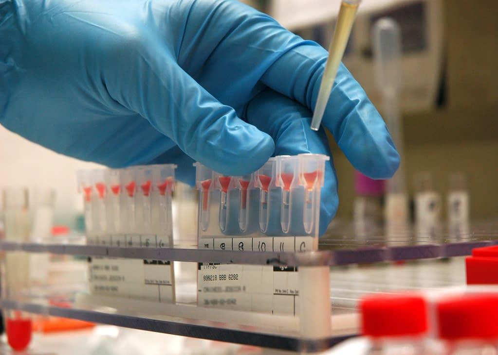 Blood Lactate Testing